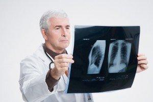 воспаление легких или пневмония