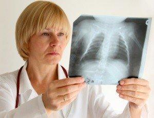 кашель без температуры - симптом воспаления легких