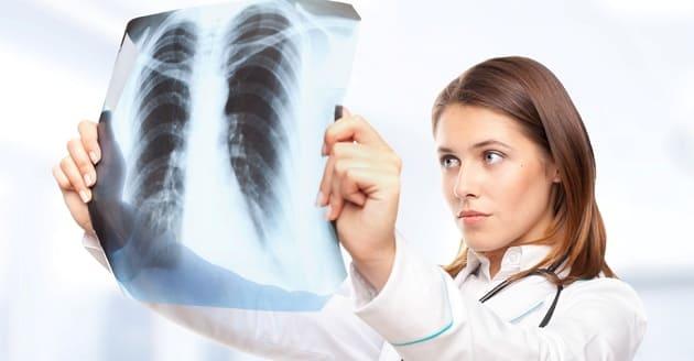 Врач смотрит на рентген грудной клетки